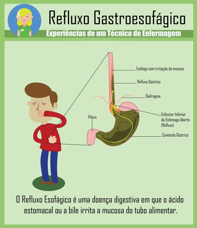 refluxogastroesofagico.png